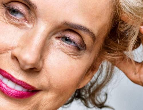 Mathilde – chirurgie du visage (troisième partie)