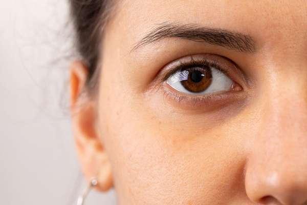 Cernes de l'oeil